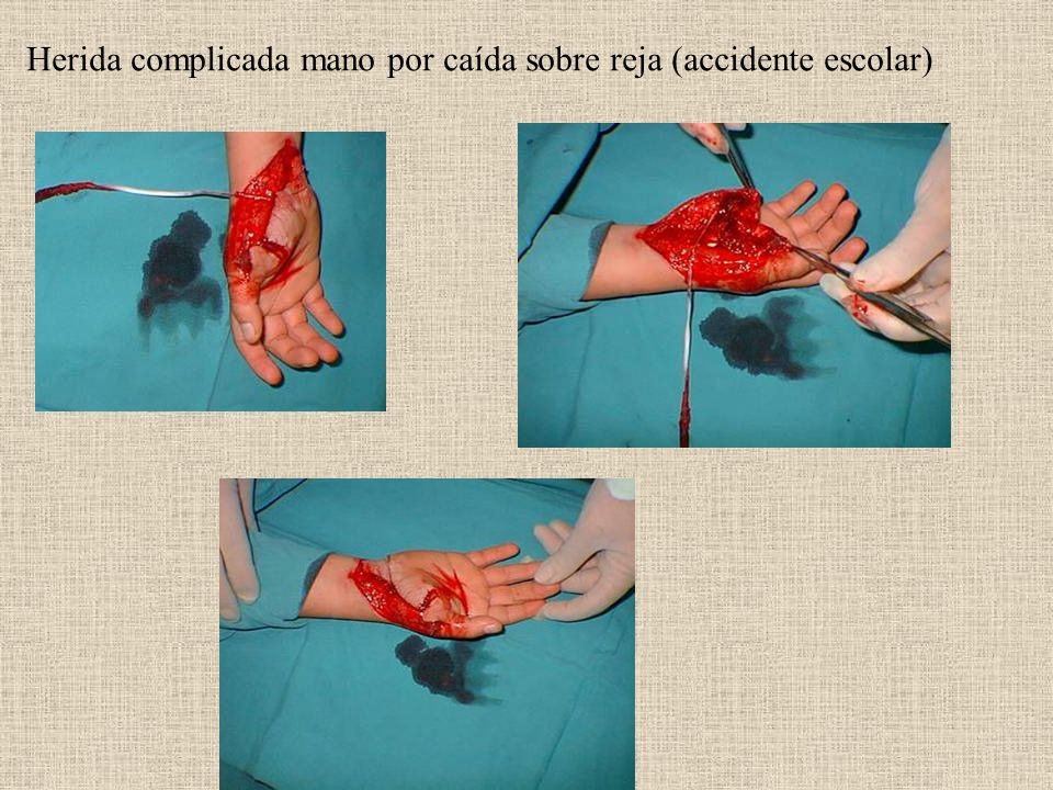 Herida complicada mano por caída sobre reja (accidente escolar)