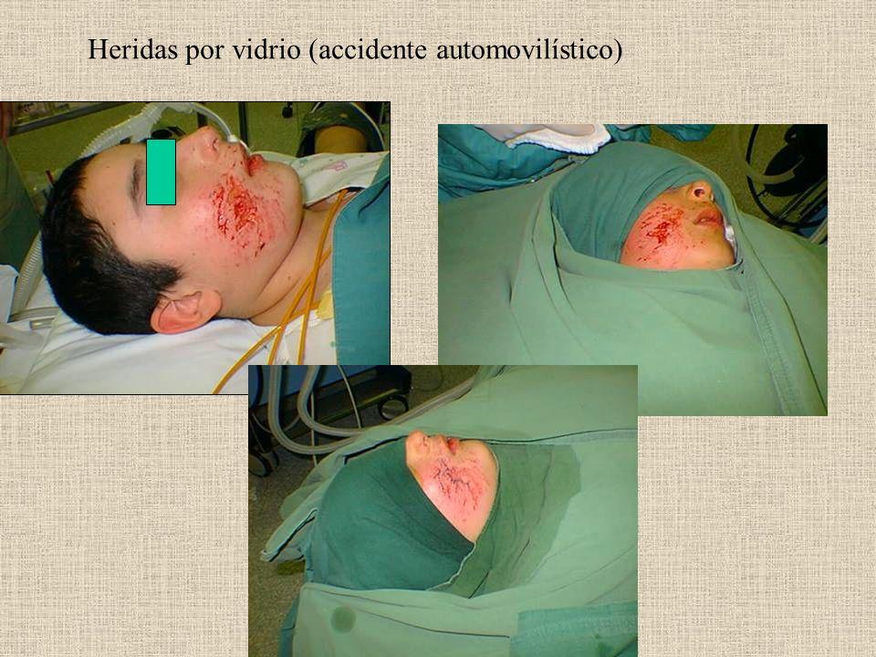 Heridas por vidrio (accidente automovilístico)