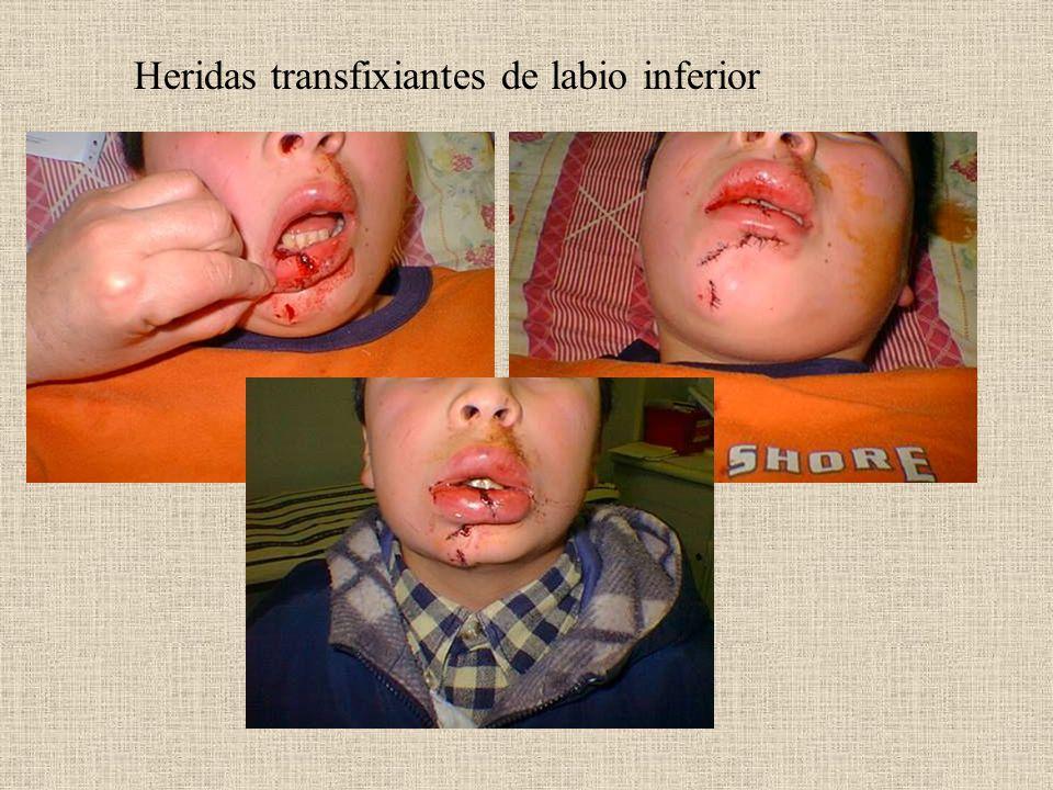 Heridas transfixiantes de labio inferior