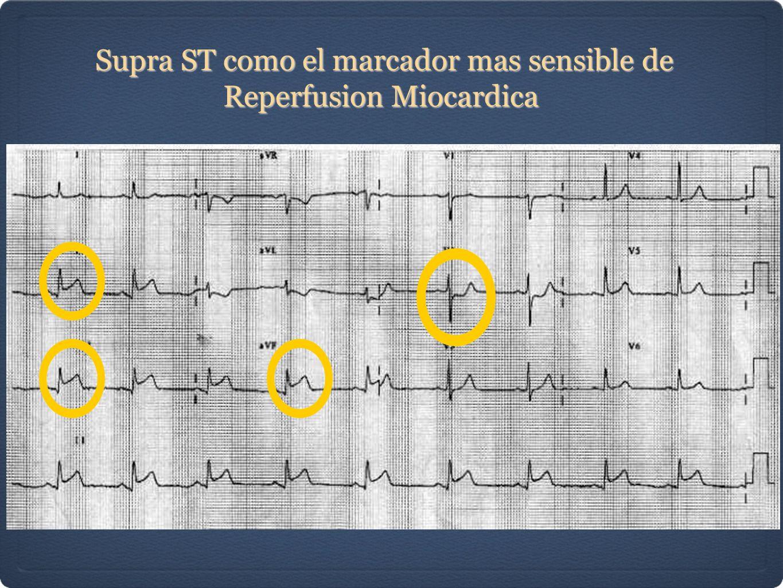 Supra ST como el marcador mas sensible de Reperfusion Miocardica