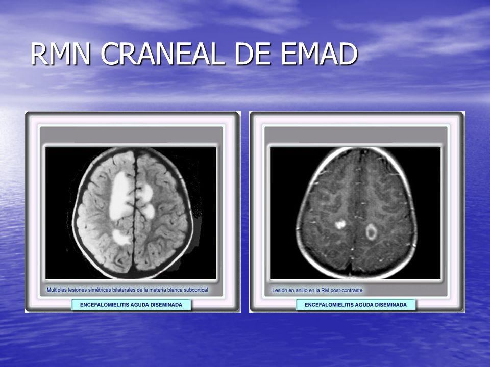 RMN CRANEAL DE EMAD