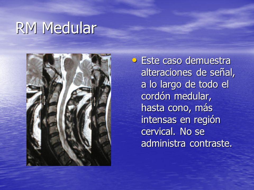 RM Medular