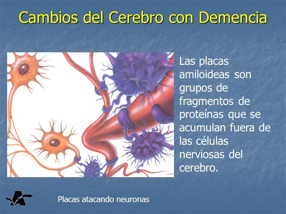Cambios del Cerebro con Demencia