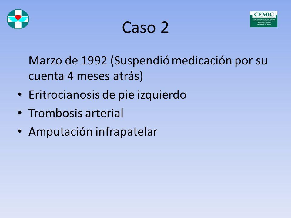 Caso 2 Marzo de 1992 (Suspendió medicación por su cuenta 4 meses atrás) Eritrocianosis de pie izquierdo.