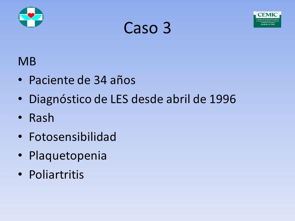 Caso 3 MB Paciente de 34 años Diagnóstico de LES desde abril de 1996