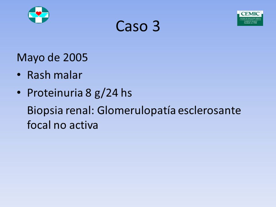 Caso 3 Mayo de 2005 Rash malar Proteinuria 8 g/24 hs