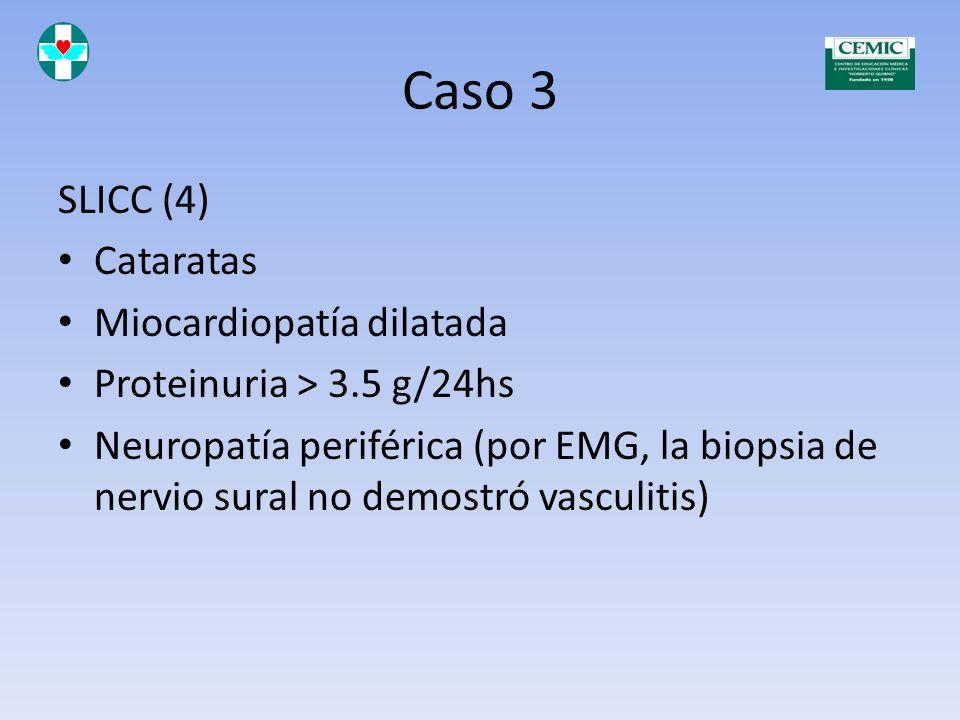 Caso 3 SLICC (4) Cataratas Miocardiopatía dilatada