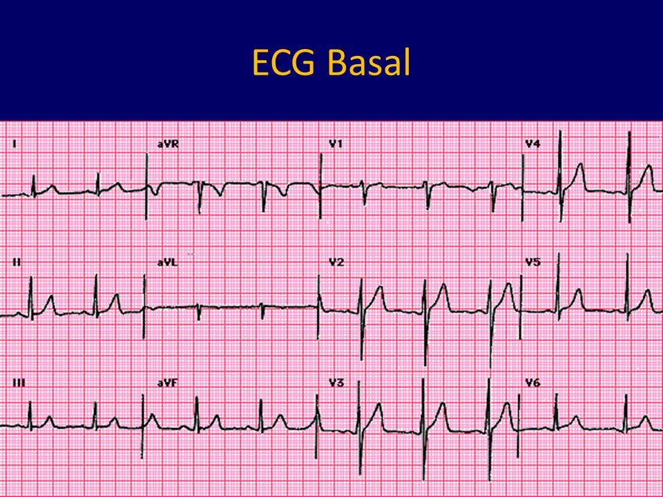 ECG Basal