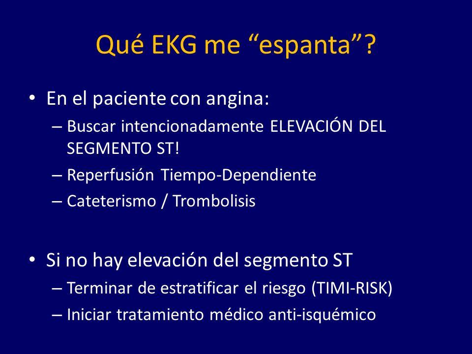 Qué EKG me espanta En el paciente con angina: