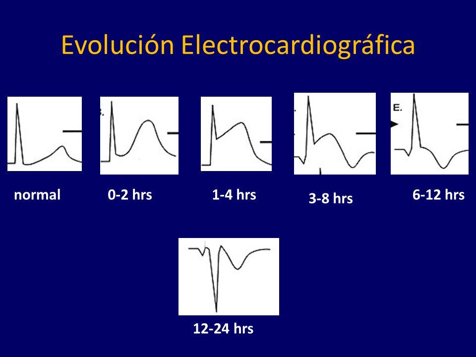 Evolución Electrocardiográfica