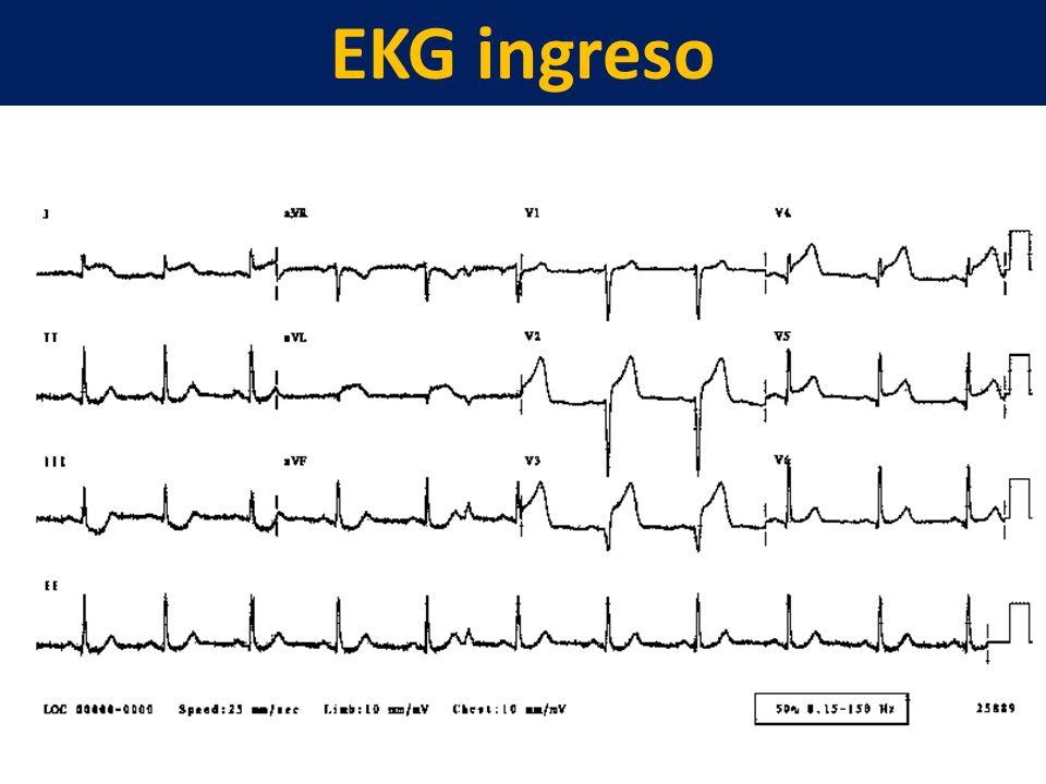 EKG ingreso