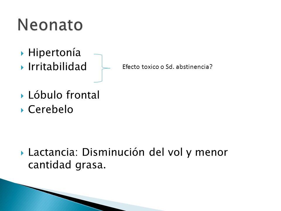 Neonato Hipertonía Irritabilidad Lóbulo frontal Cerebelo