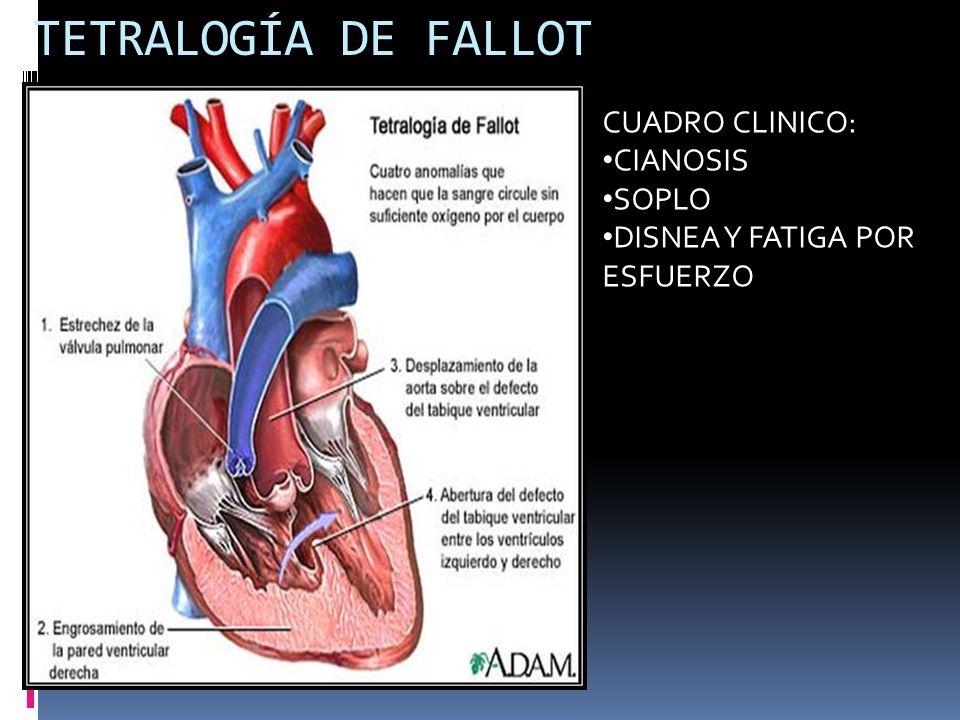 TETRALOGÍA DE FALLOT CUADRO CLINICO: CIANOSIS SOPLO