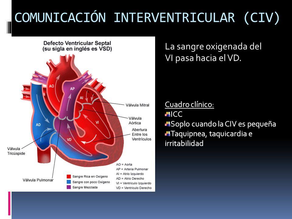 COMUNICACIÓN INTERVENTRICULAR (CIV)