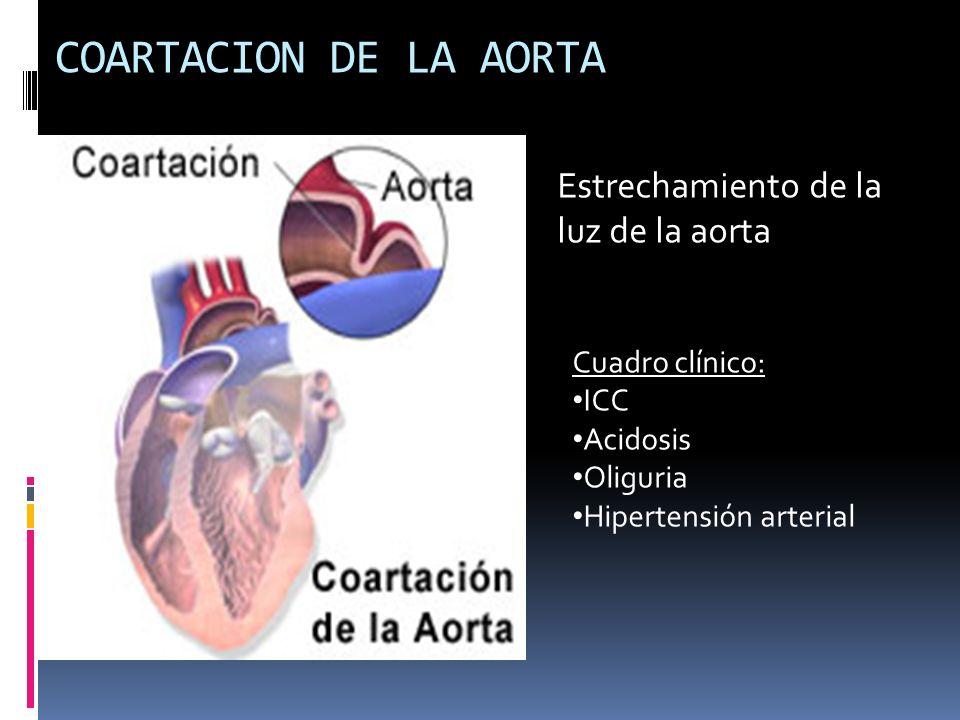 COARTACION DE LA AORTA Estrechamiento de la luz de la aorta