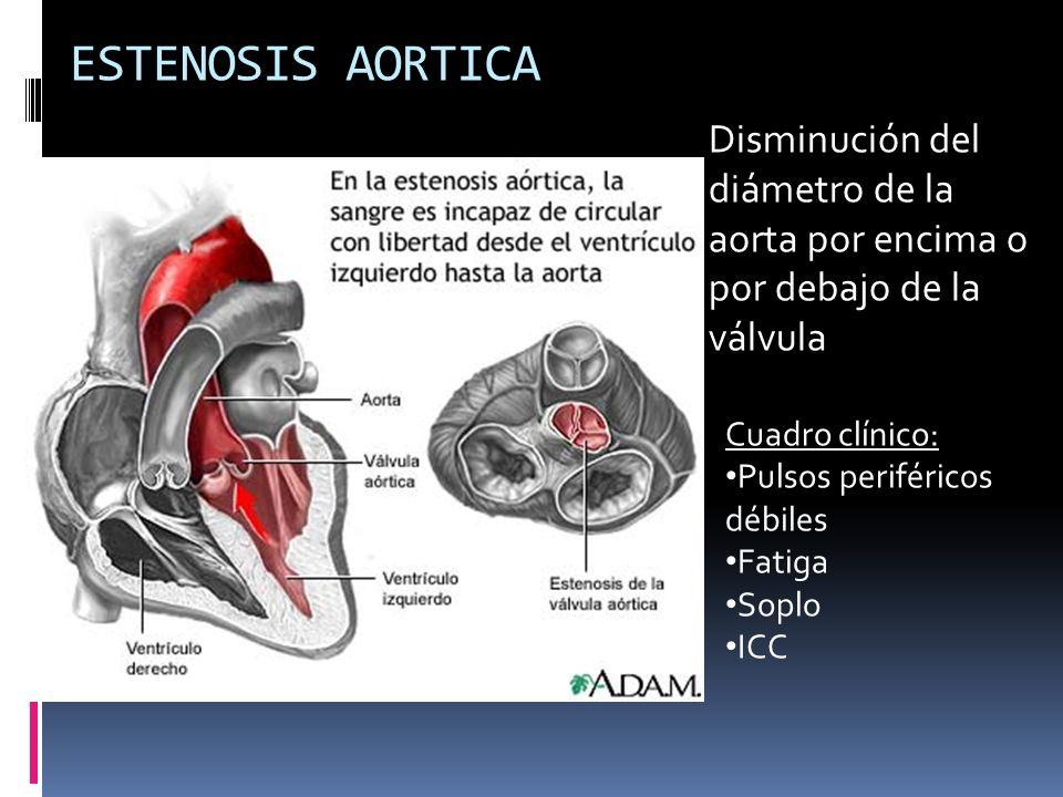 ESTENOSIS AORTICA Disminución del diámetro de la aorta por encima o por debajo de la válvula. Cuadro clínico: