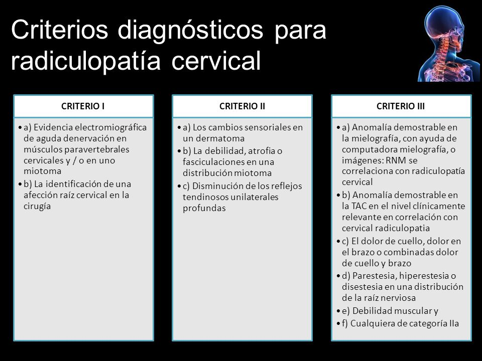 Criterios diagnósticos para radiculopatía cervical