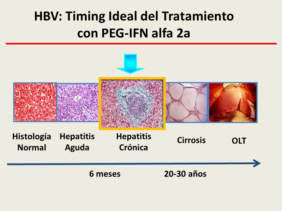 HBV: Timing Ideal del Tratamiento con PEG-IFN alfa 2a