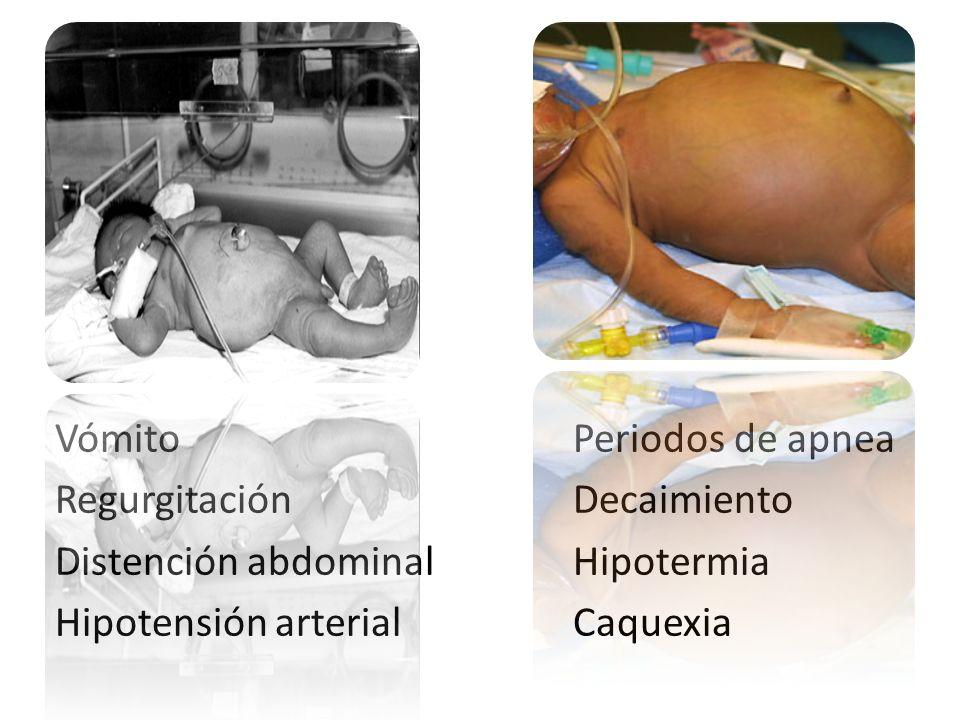 Vómito Periodos de apnea. Regurgitación. Decaimiento. Distención abdominal. Hipotermia. Hipotensión arterial.