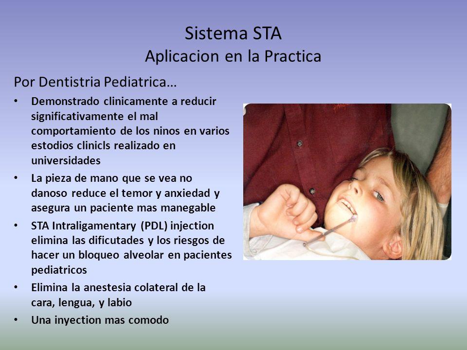 Sistema STA Aplicacion en la Practica