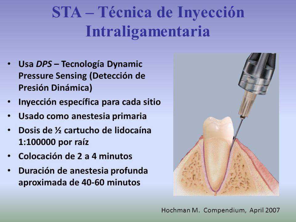 STA – Técnica de Inyección Intraligamentaria