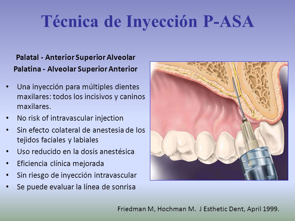 Técnica de Inyección P-ASA