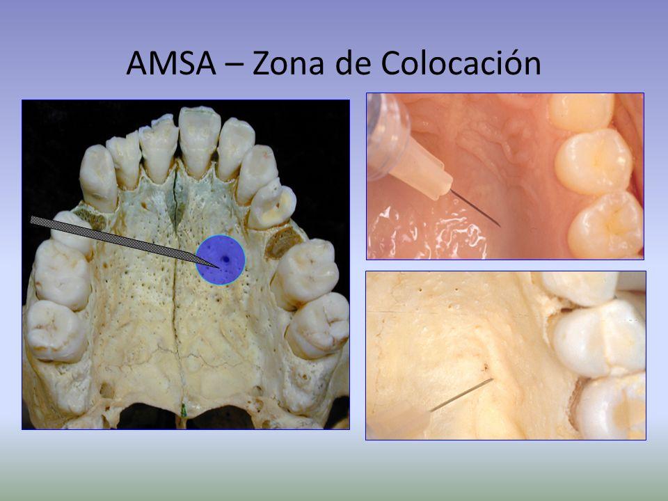 AMSA – Zona de Colocación