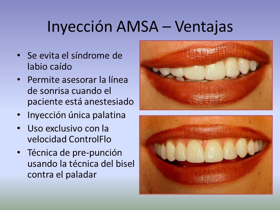 Inyección AMSA – Ventajas