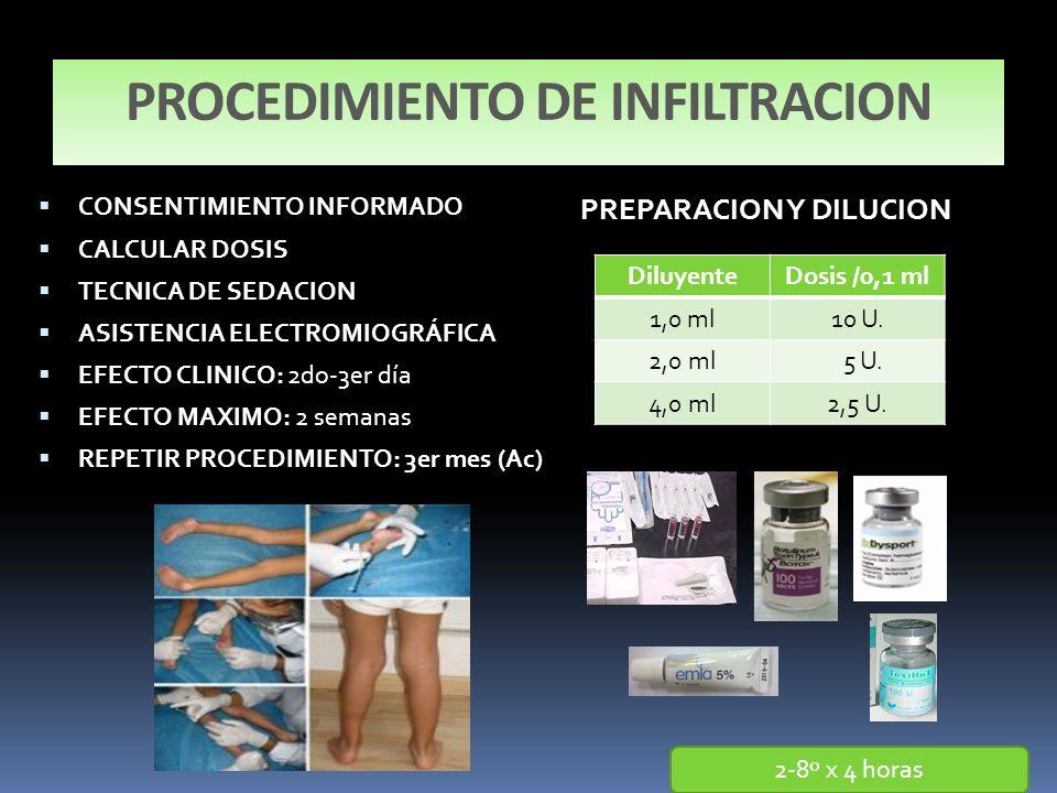 PROCEDIMIENTO DE INFILTRACION
