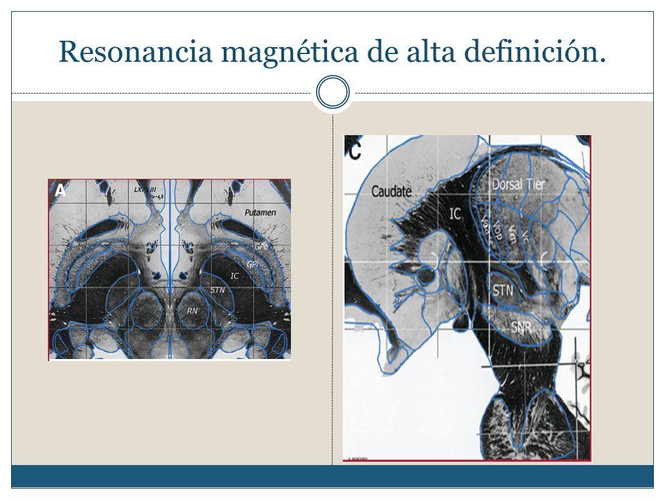 Resonancia magnética de alta definición.