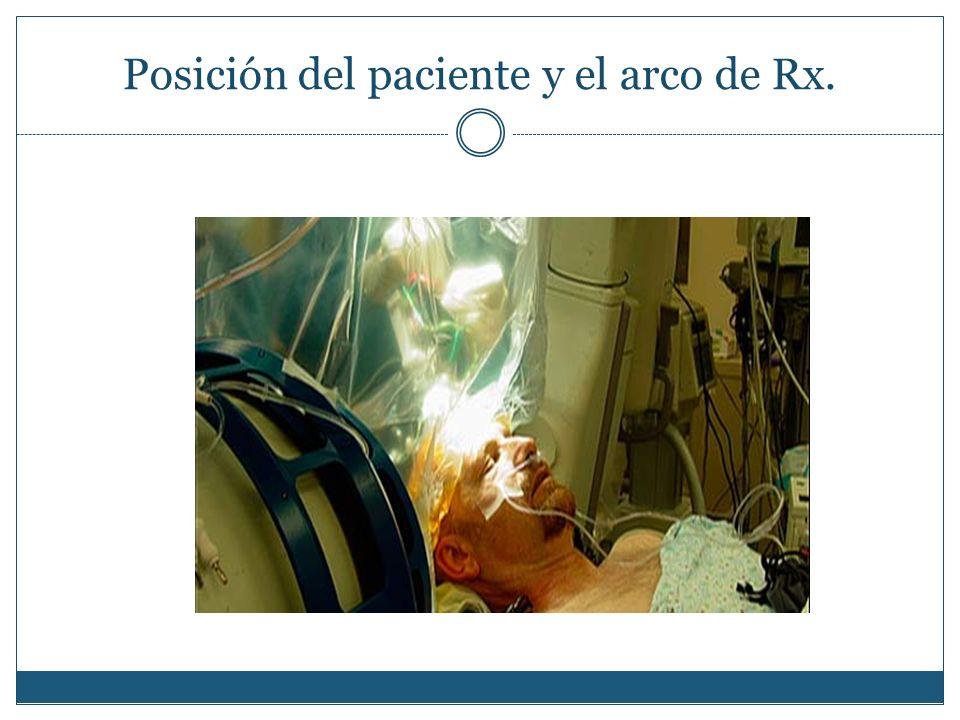 Posición del paciente y el arco de Rx.