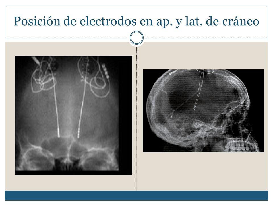 Posición de electrodos en ap. y lat. de cráneo