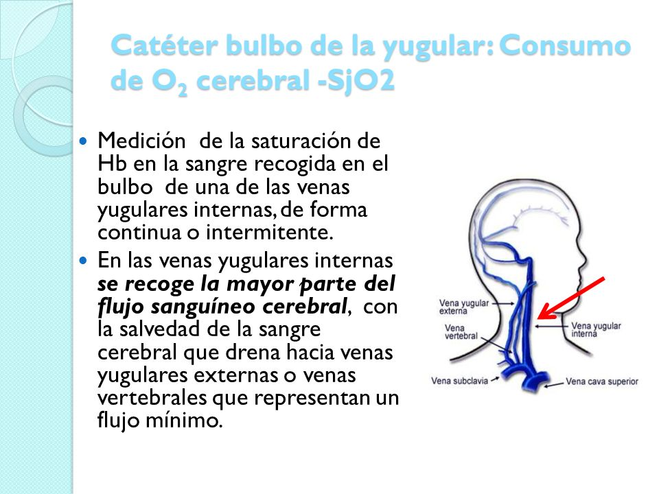 Catéter bulbo de la yugular: Consumo de O2 cerebral -SjO2
