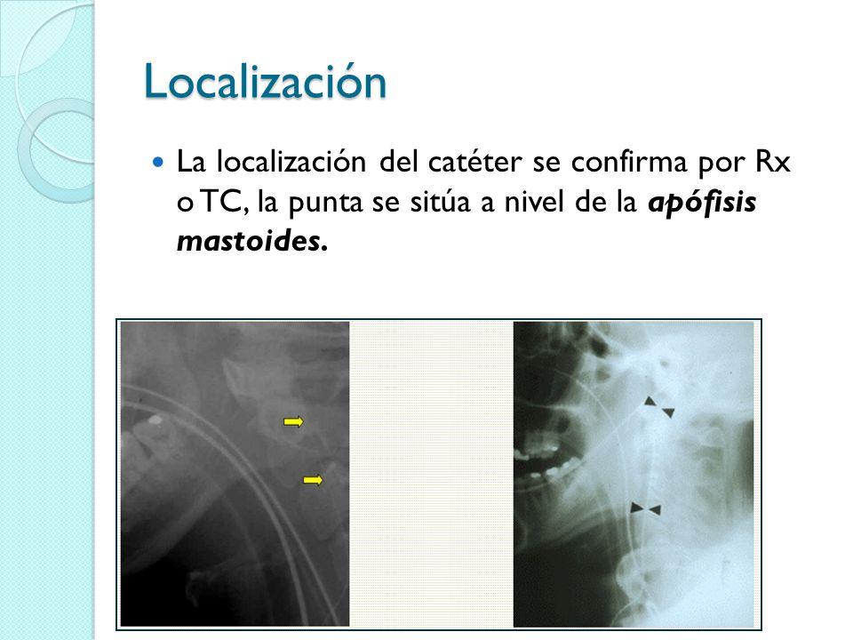 Localización La localización del catéter se confirma por Rx o TC, la punta se sitúa a nivel de la apófisis mastoides.