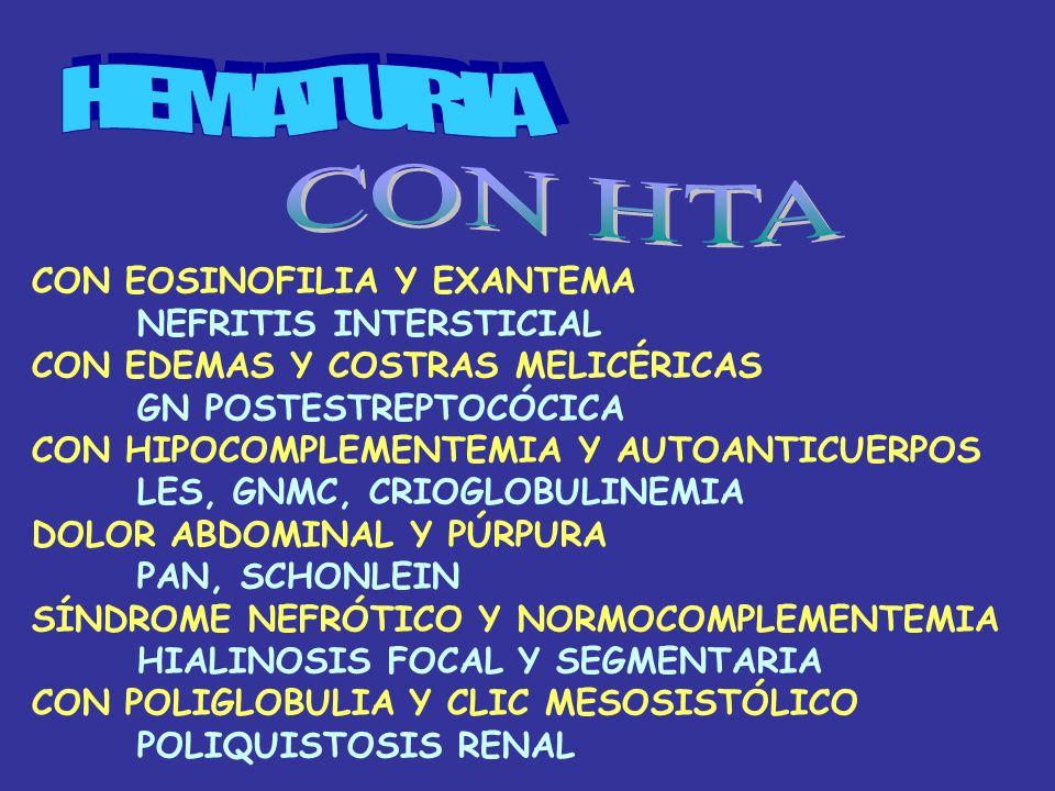 HEMATURIA CON HTA CON EOSINOFILIA Y EXANTEMA NEFRITIS INTERSTICIAL