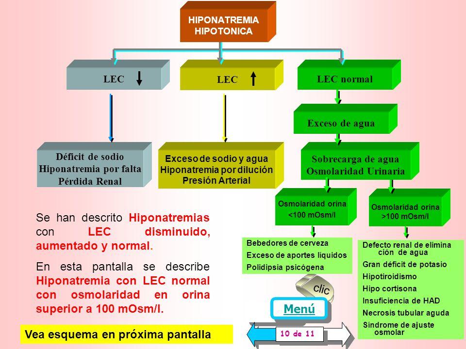 Hiponatremia por dilución Hiponatremia por falta