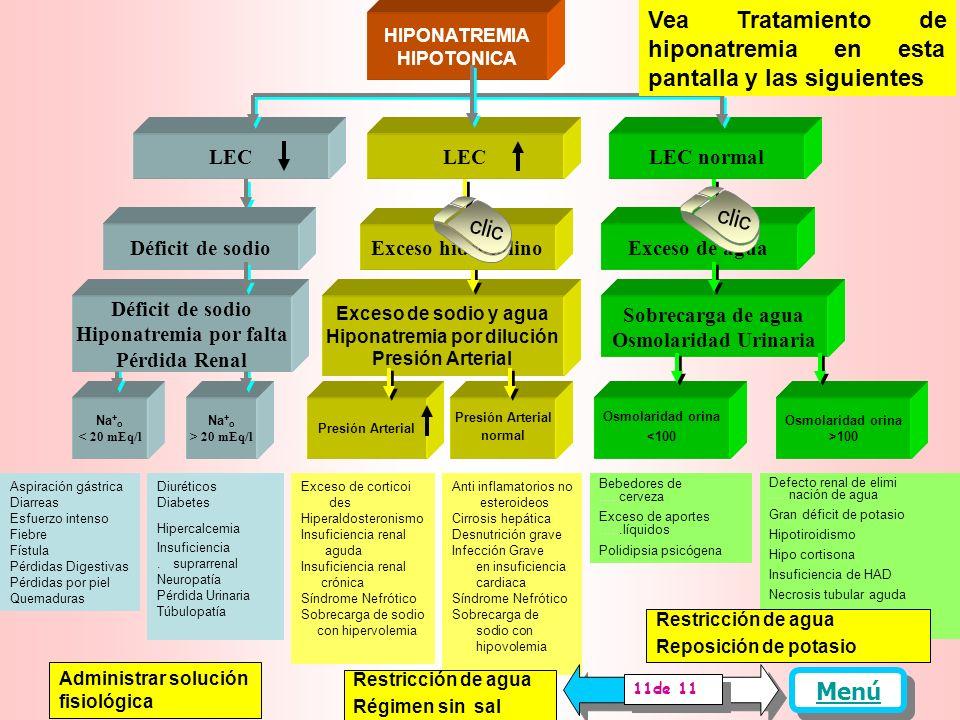 Hiponatremia por falta Hiponatremia por dilución