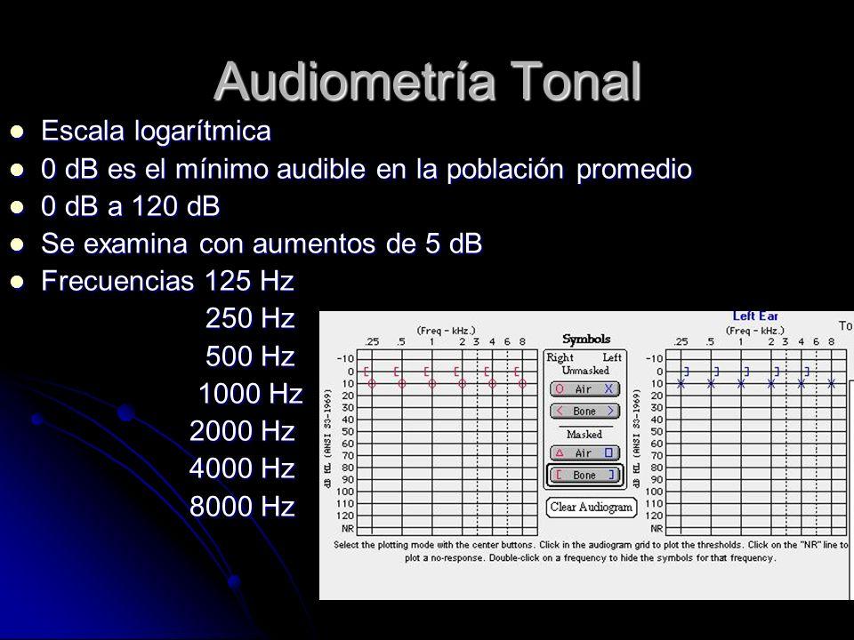 Audiometría Tonal Escala logarítmica