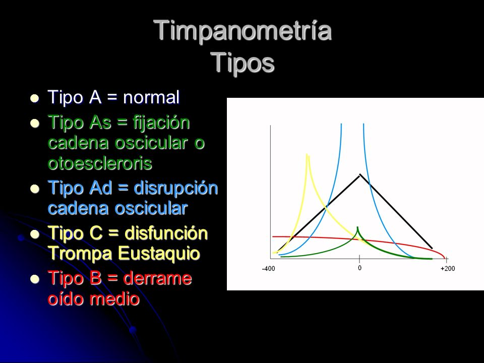 Timpanometría Tipos Tipo A = normal