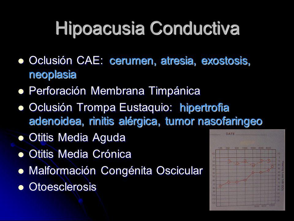 Hipoacusia Conductiva