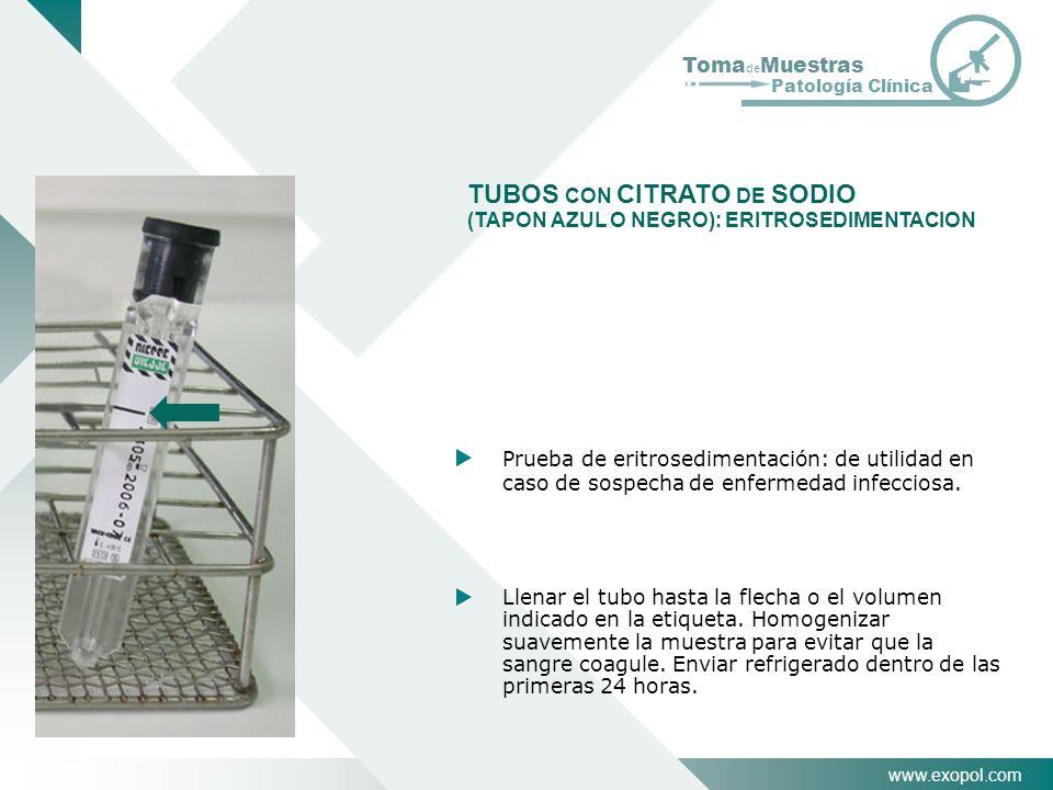 TUBOS CON CITRATO DE SODIO (TAPON AZUL O NEGRO): ERITROSEDIMENTACION