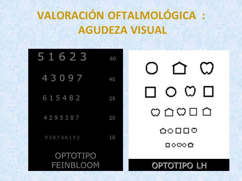 VALORACIÓN OFTALMOLÓGICA : AGUDEZA VISUAL