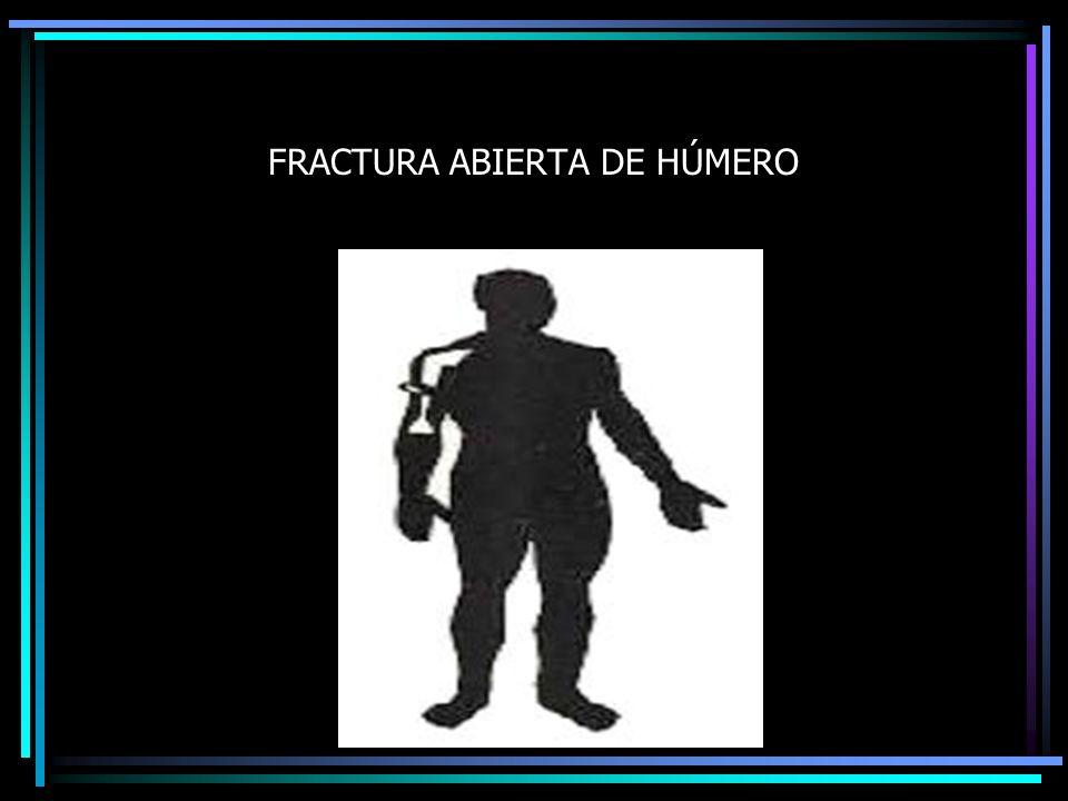 FRACTURA ABIERTA DE HÚMERO