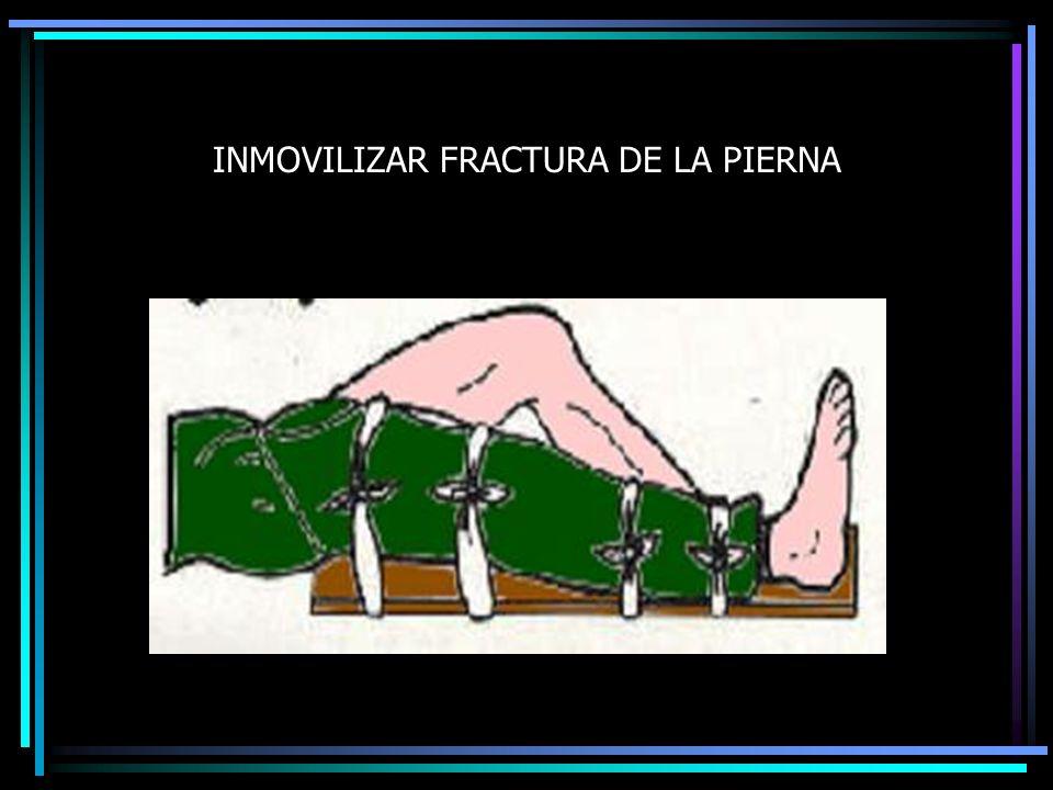 INMOVILIZAR FRACTURA DE LA PIERNA