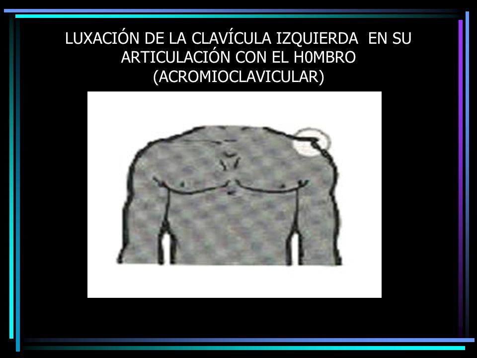 LUXACIÓN DE LA CLAVÍCULA IZQUIERDA EN SU ARTICULACIÓN CON EL H0MBRO (ACROMIOCLAVICULAR)