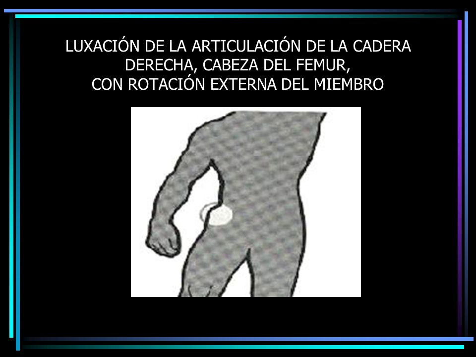 LUXACIÓN DE LA ARTICULACIÓN DE LA CADERA DERECHA, CABEZA DEL FEMUR, CON ROTACIÓN EXTERNA DEL MIEMBRO