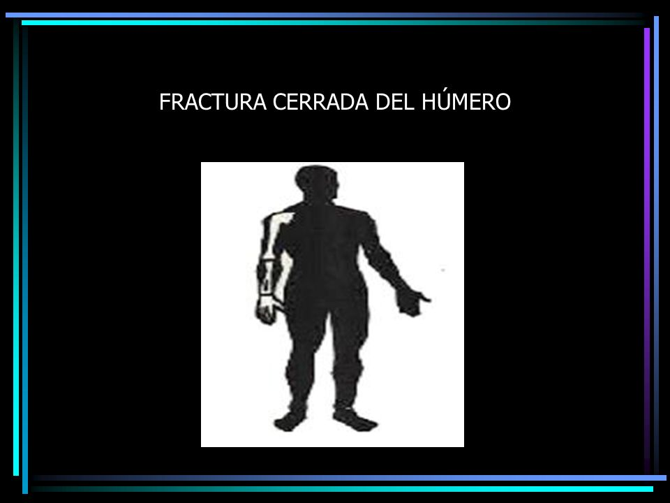 FRACTURA CERRADA DEL HÚMERO