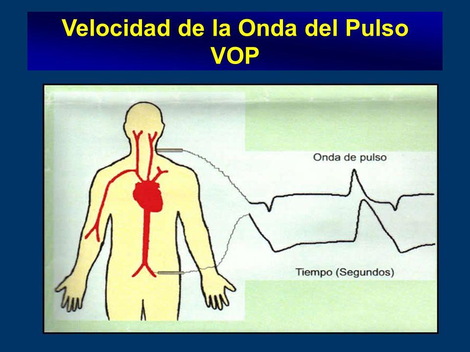 Velocidad de la Onda del Pulso VOP