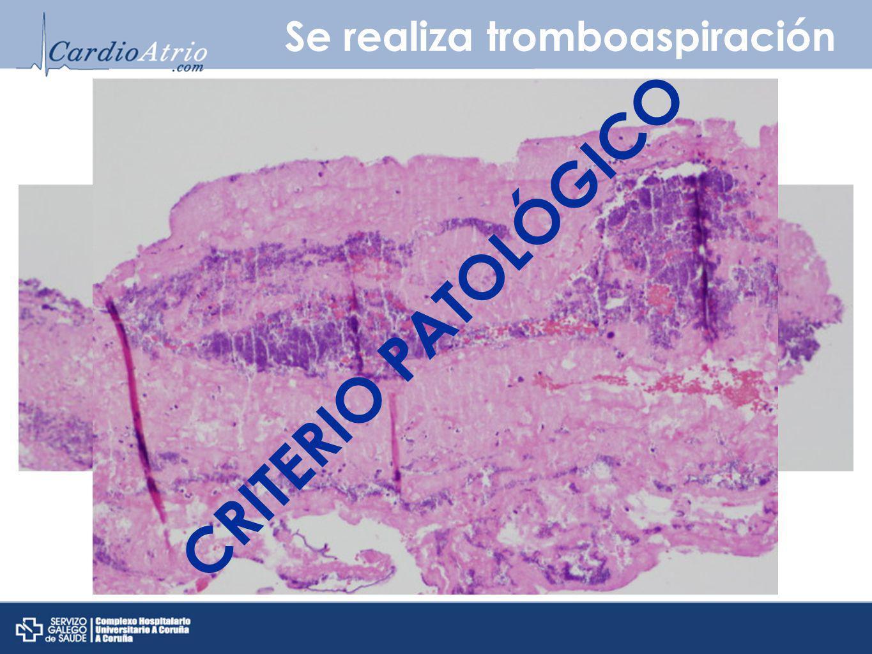 Se realiza tromboaspiración