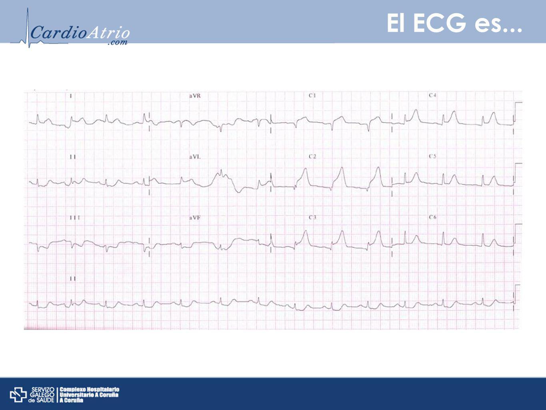 El ECG es... El ECG muestra IAM anterior.